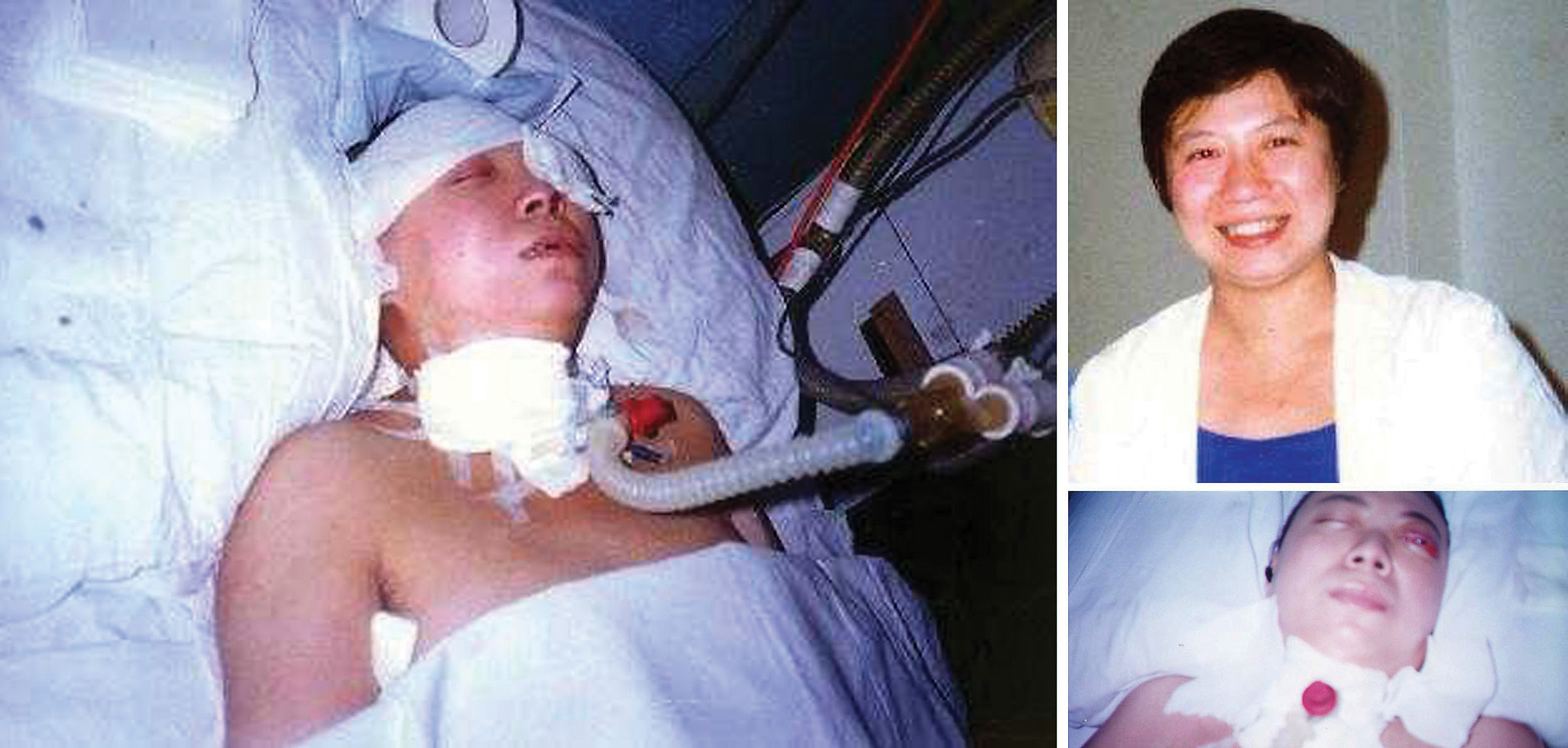 Falun Gong practitioner Ms. Zhao Xin before and after police beating